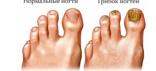 Чем убить грибок ногтей на ногах