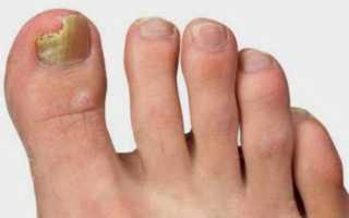 Лечение грибка на большом пальце ноги