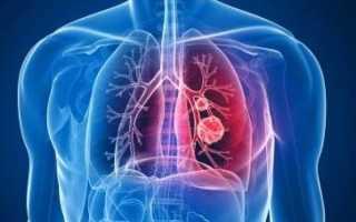 Растирание при пневмонии