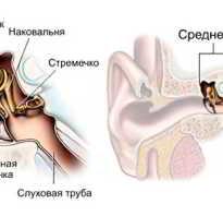 Воспаление среднего уха симптомы лечение