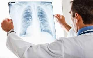 Сколько лечится пневмония у взрослых