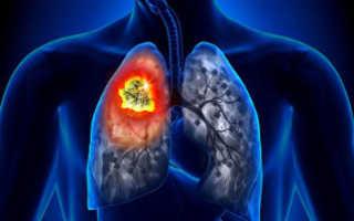 Сколько стоит операция рак легких