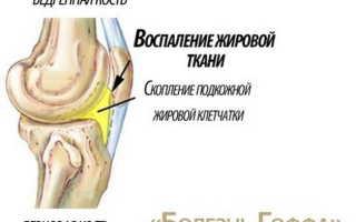 Тело гоффа коленного сустава