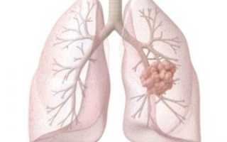 Рак легких передается воздушно капельным путем