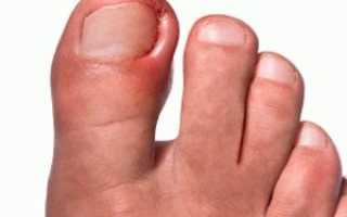 Костяная шишка на ноге