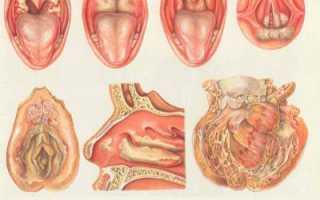 При туберкулезе болит горло