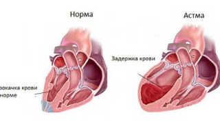 Сердечная астма симптомы и лечение