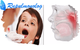 Чем лечить аденоидный кашель