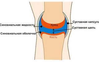 Жидкость в коленях как лечить