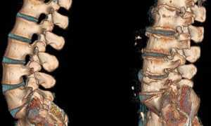 Массаж при поясничном остеохондрозе