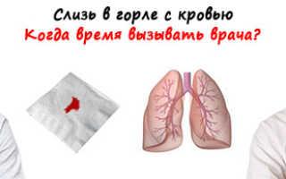 Кровь в слизи из горла