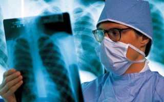 Ранняя диагностика рака легких