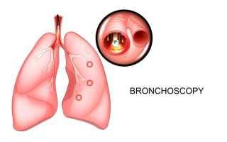 Фибробронхоскопия подготовка