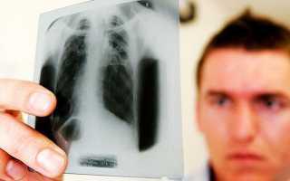 Туберкулез передается по наследству или нет