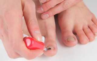 Лечение грибка ногтей лекарства