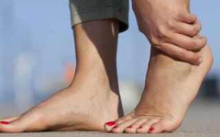 Болят стопы ног при ходьбе