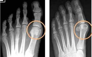 Народные средства лечения подагры на ногах