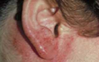 В ушной раковине болячка