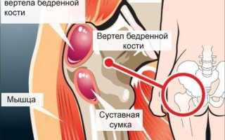 Причины воспаления тазобедренного сустава у женщин