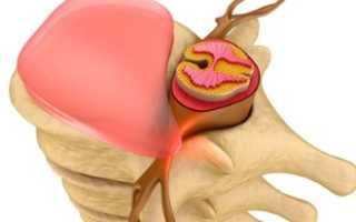 Витамины при болях в пояснице