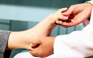 Наросты на пальцах ног лечение народными средствами