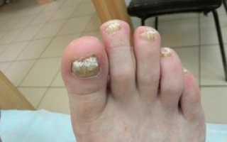 Новое средство против грибка ногтей