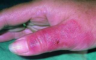 Как вылечить рожистое воспаление ноги