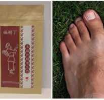 Таблетки от шишек на ногах