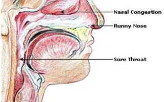 Народное средство от мокроты в горле