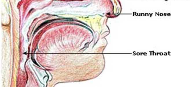 Препараты разжижающие мокроту в носоглотке
