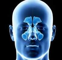 Киста гайморовой пазухи симптомы