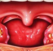 Лечение ангины гнойной