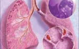 Саркоидоз легких симптомы лечение
