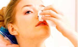 Как на уроке вызвать кровь из носа