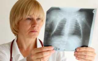 Признаки детской пневмонии