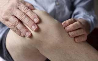 Гигрома на коленном суставе