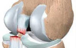 Повреждения крестообразных связок коленного сустава