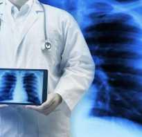 Сдача мокроты на туберкулез