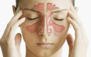 При заложенности носа болит голова