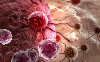 Как заболеть раком легких быстро