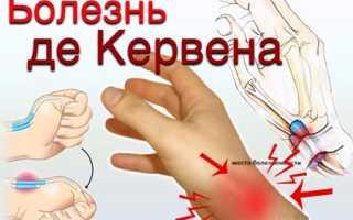 Болезнь де кервена операция