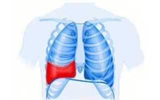 Пункция плевральной полости при гемотораксе