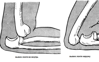 Опухоль и боль в локтевом суставе