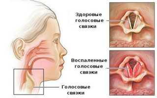 Лечение при остром ларингите