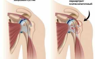Компресс для плечевого сустава
