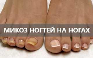 Грибок ногтей на ногах что это такое