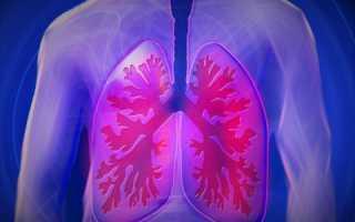 Метатуберкулезные изменения в легких что это