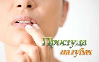 Избавиться от простуды на губе