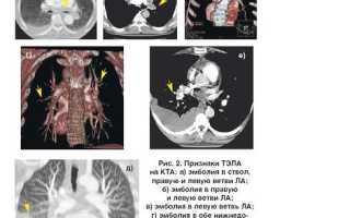Клиника тромбоэмболии легочной артерии