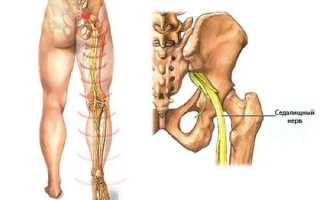 Лечение при воспалении седалищного нерва видео